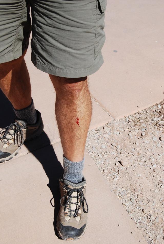 Bashed Leg
